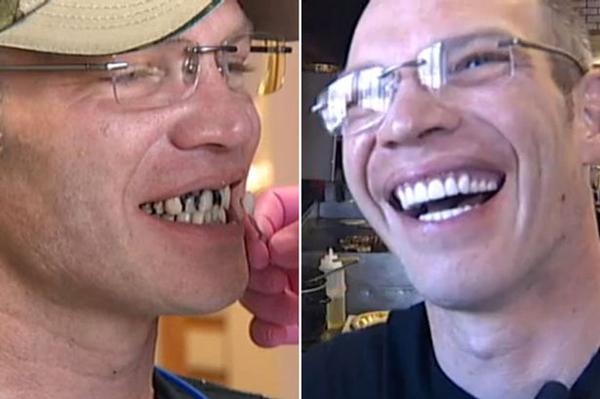 Chàng bồi bàn được boa nửa tỷ vì hàm răng quá xấu 1