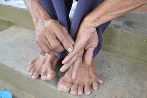Người đàn ông có bàn chân kỳ lạ ở miền Tây 1