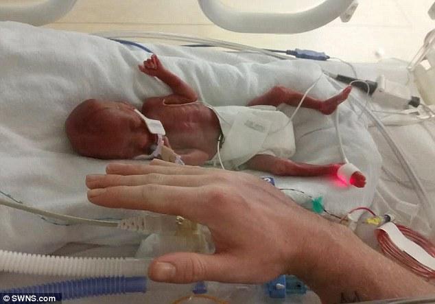 Bé gái sinh non 5 lạng và sức sống mãnh liệt  1