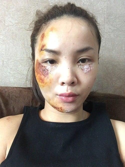 Hình ảnh Gương mặt bầm dập do tai nạn giao thông của ca sĩ Yến Trang số 1