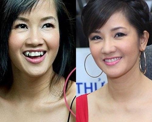 Image result for hình hàm răng
