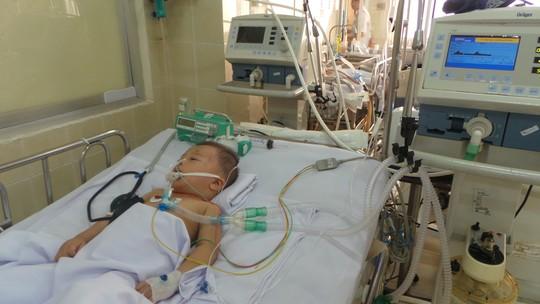 TP.HCM: Bé trai 2 tuổi nguy kịch sau khi rơi từ tầng 2 xuống đất 1