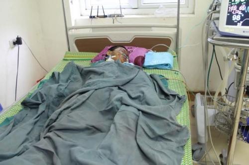 Xác định vật lạ phát nổ làm bé trai 9 tuổi ở Hà Tĩnh dập nát 2 tay 1