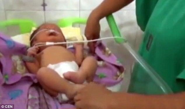 Kỳ lạ bé sơ sinh có lỗ mũi như 2 cái ống gắn trên mặt 1