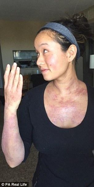 Sau ca nâng ngực, chuyên gia thẩm mỹ gốc Việt bị eczema 2