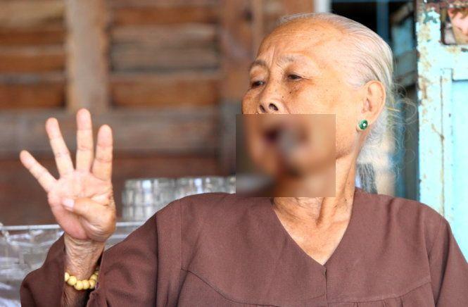 Kỳ lạ cụ bà 87 tuổi ở Miền Tây mọc sừng ở miệng 1