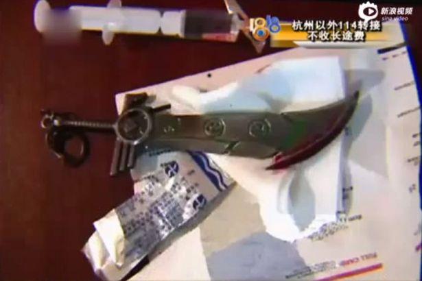 Bị dao đâm vào lưng do tự cắt trĩ tại nhà 1