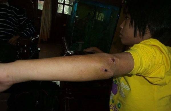 Diễn biến mới vụ bé gái 10 tuổi bị nhốt trong chùa, chằng chịt vết thương 1