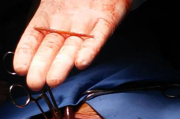 Phẫu thuật lấy dị vật thành công trong tim người đàn ông 1