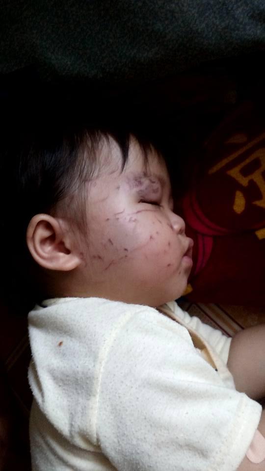 Bé 11 tháng tuổi bị bạn cắn, cấu nát mặt khi gửi ở nhà trẻ tư thục 1
