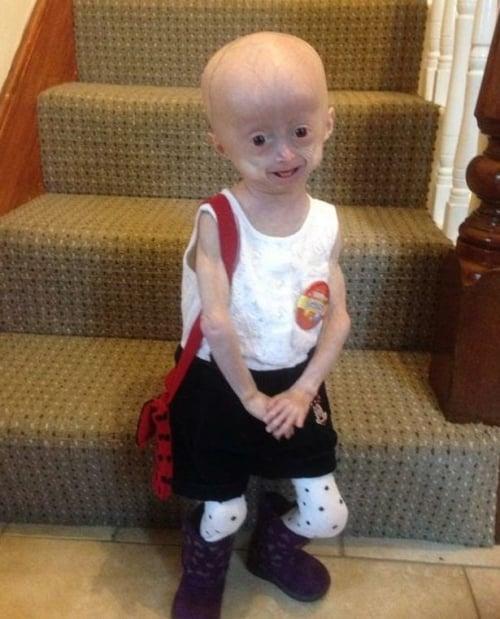 Bé gái 5 tuổi hóa bà lão vì bệnh lạ 3