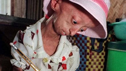 Bé gái 5 tuổi hóa bà lão vì bệnh lạ 1