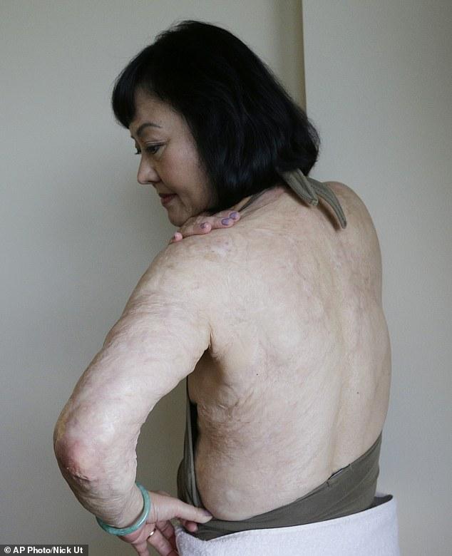 'Em bé napalm' - biểu tượng chiến tranh Việt Nam được điều trị laser miễn phí 9