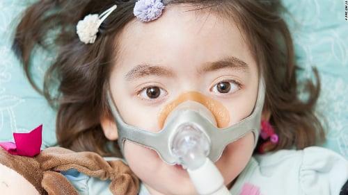 Bố mẹ cho con gái 5 tuổi được quyền lựa chọn sống hoặc chết 2