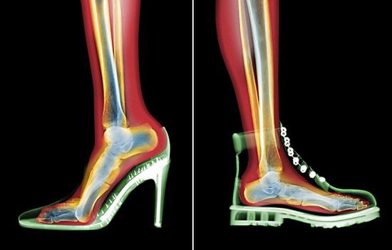 Giày cao gót và những tác hại mà phái đẹp nên biết 1