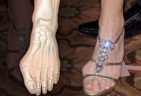 Kết quả hình ảnh cho đau chân với việc đi giày cao gót