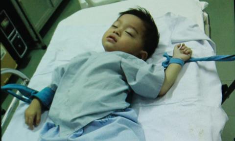 Bé trai nuốt đinh dài 4,5cm được cứu sống thành công 1