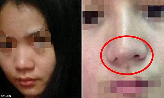 Đòi bồi thường 1 nghìn nhân dân tệ sau ca phẫu thuật khiến mũi bị lệch 1