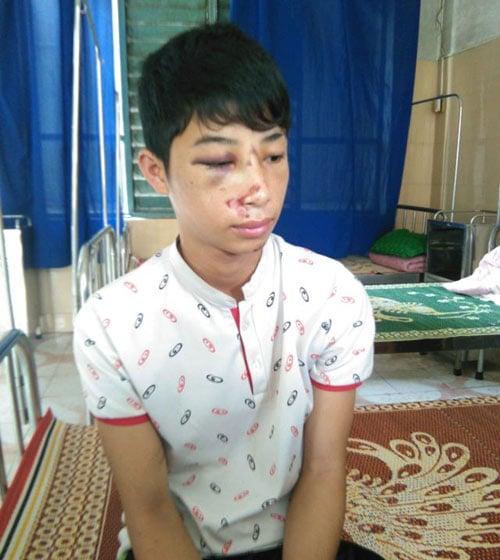 Nam sinh lớp 10 bị công an xã đánh nhập viện vì nhầm là trộm 1