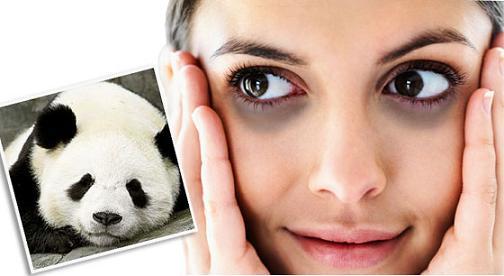 Mẹo đơn giản loại bỏ quầng thâm mắt hiệu quả 3