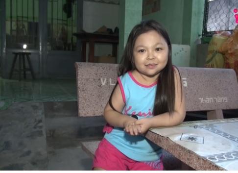 Mắc bệnh lạ cô gái 25 tuổi trông như em bé 5 tuổi ở Long An 1