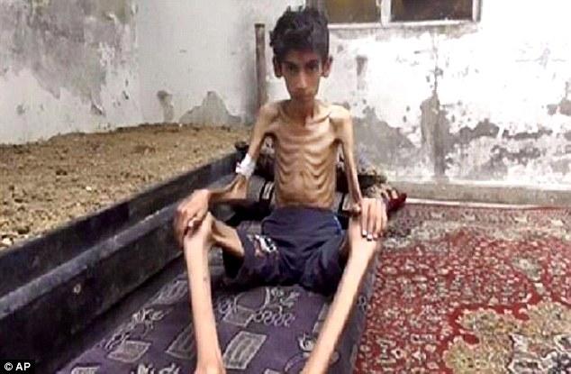 Thảm cảnh khốn cùng của người dân Syria trong vùng chiến sự  1