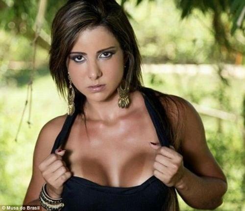 Người mẫu Brazil qua đời sau khi tiêm chất độn mặt 1