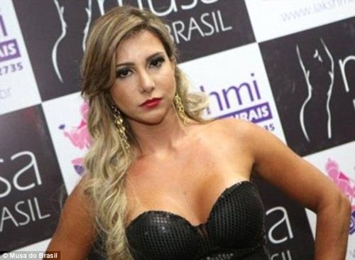 Người mẫu Brazil qua đời sau khi tiêm chất độn mặt 2