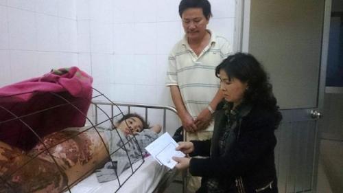 Lao đao người mẹ mang thai 6 tháng bỏng nặng vì rơi vào chảo dầu 2