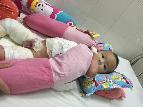 Xót thương bé một tuổi bỏng nặng do bị cả ấm nước sôi đổ lên người 1