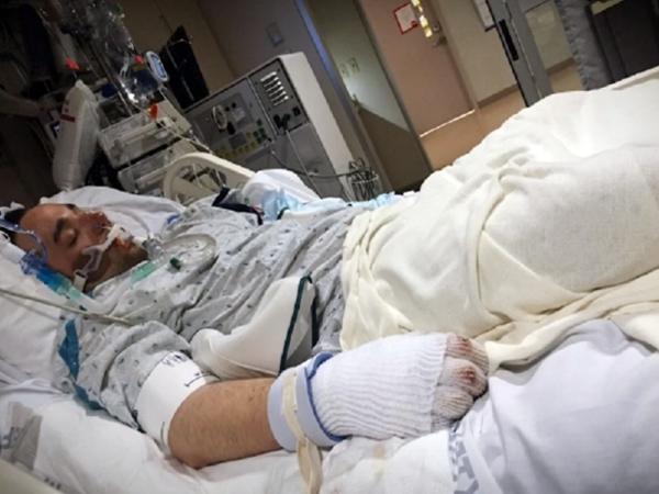 Người đàn ông thoát chết thần kỳ sau khi bị vùi trong tuyết 12 tiếng 1