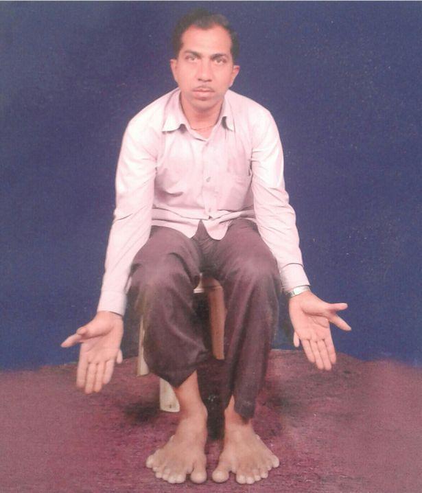 Người đàn ông có 28 ngón tay và chân 1