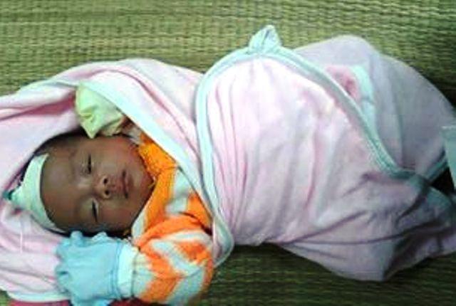 Đốt than sưởi ấm, bé gái một tháng tuổi suýt tử vong 1