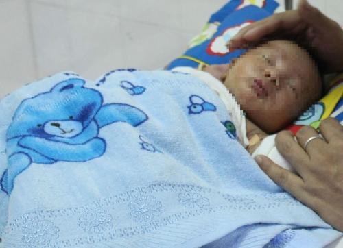 Bé sơ sinh bị dị tật ruột không có thần kinh hiếm gặp 1