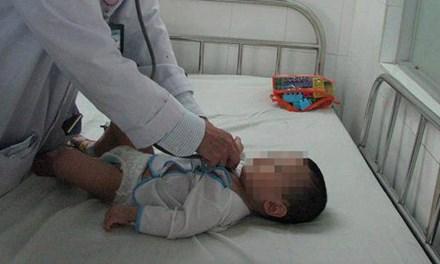 Phát hiện tụ điện tử trong phế quản bé 8 tháng tuổi 1
