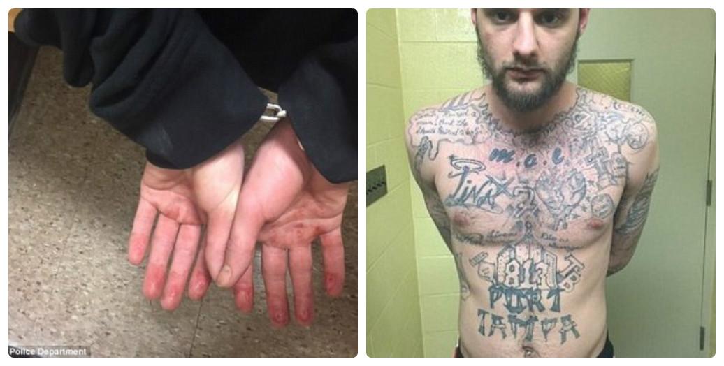 Tội phạm bị truy nã cắn nát đầu ngón tay để che giấu danh tính 1