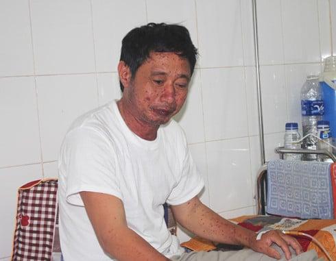 Người đàn ông ăn cá biển bị sưng phù mặt mũi ở Nghệ An 1