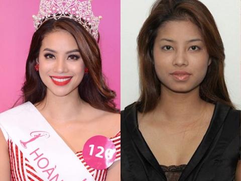 Hoa hậu, Á hậu Việt và nghi án phẫu thuật thẩm mỹ 3