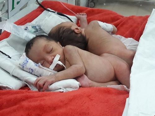 Khẩn cấp phẫu thuật cho cặp song sinh dính liền hiếm gặp 1