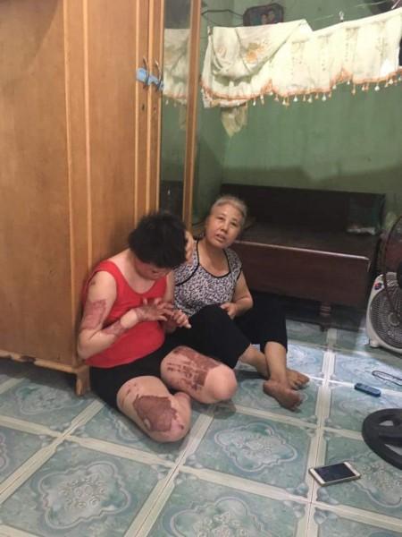 Chồng tạt xăng đốt vợ từ tháng 2, vì sao 6 tháng sau mới bị điều tra? 2