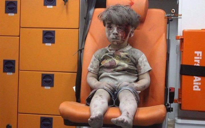 Xót xa hình ảnh bé trai Syria ngồi đờ đẫn trong xe cứu thương 1