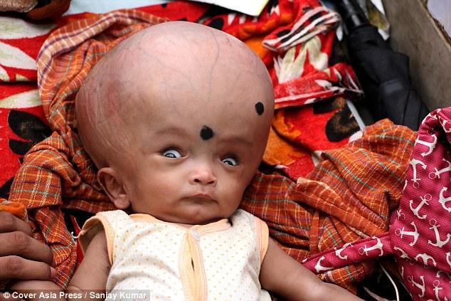 Xót xa bé 4 tháng tuổi bị cha mẹ bỏ rơi vì đầu to