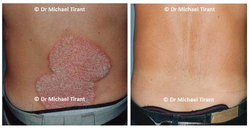 Hình ảnh Những điều bạn cần biết về corticoid điều trị bệnh vảy nến số 2