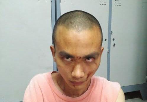 Nghi phạm truy sát trong chùa ở Sài Gòn bị bệnh tâm thần 1