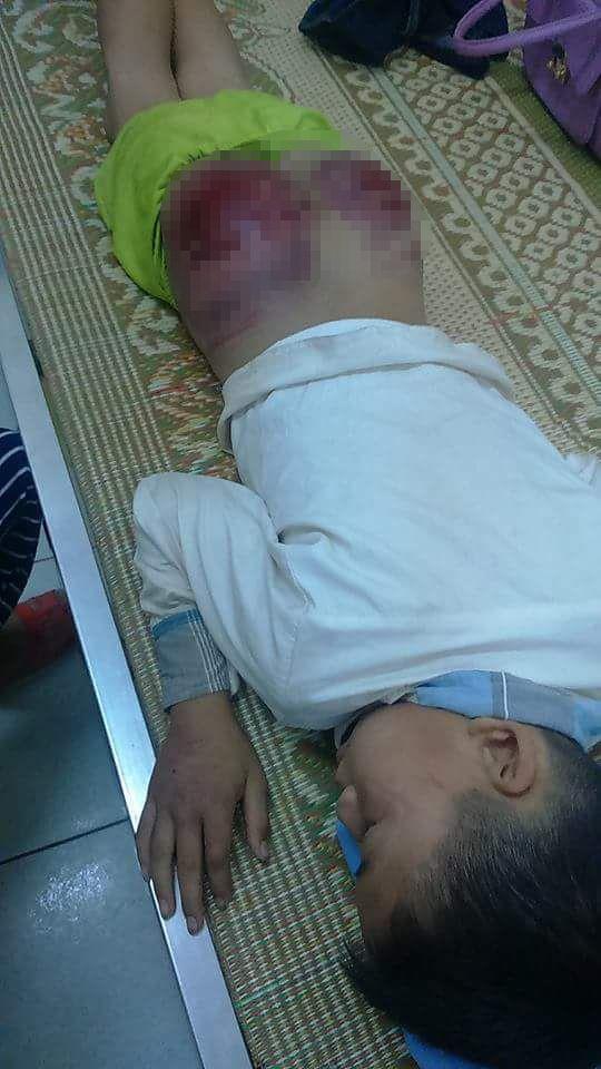 Bé trai bị bố đẻ dùng que tre đánh bầm dập mông 1
