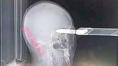 Người đàn ông sống sót bất ngờ sau khi bị dao găm vào đầu 1