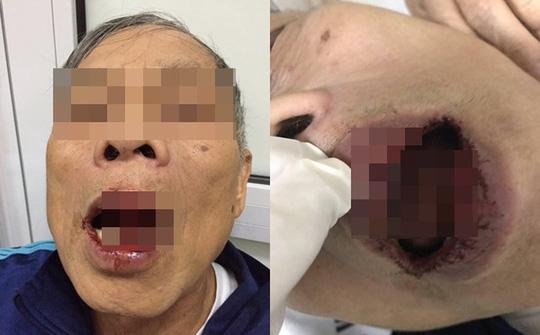 Con gái tiến sĩ 76 tuổi nghi bị cán bộ Sở Ngoại vụ đánh nói gì? 1