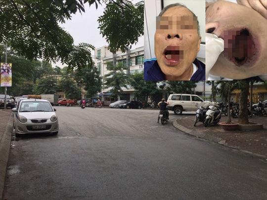 'Hàng xóm' người bị tố đánh cụ già bất ngờ trước tin lan truyền 1
