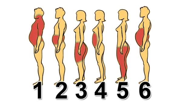 Vị trí tích mỡ trên cơ thể, nguyên nhân và cách khắc phục 1