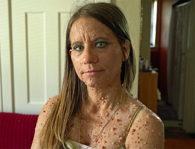 Hình ảnh về người phụ nữ với hàng nghìn khối u trên cơ thể 2